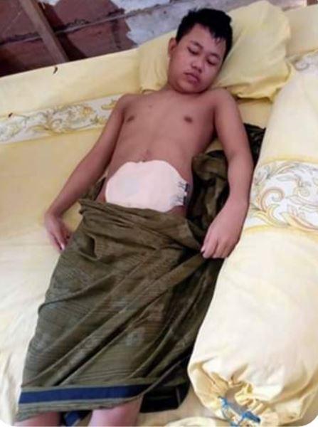 """Butuh Uluran Tangan, """"TOMI"""" Seorang Pelajar warga Desa Lambai menderita Usus Buntu Menahun"""